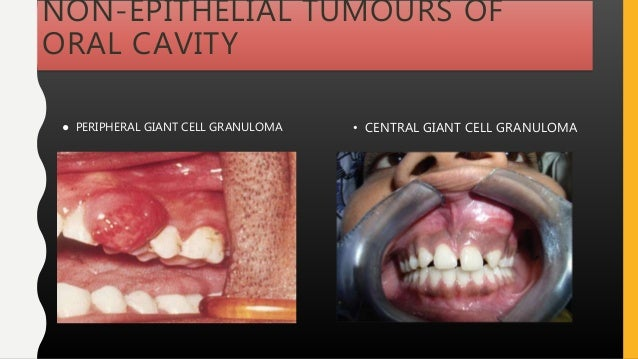 NON-EPITHELIAL TUMOURS OF ORAL CAVITY • CENTRAL GIANT CELL GRANULOMA● PERIPHERAL GIANT CELL GRANULOMA
