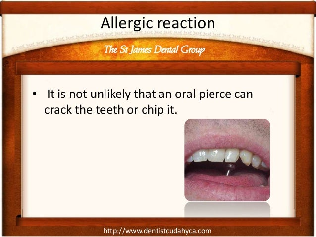 http://www.dentistcudahyca.com Allergic reaction • It is not unlikely that an oral pierce can crack the teeth or chip it. ...