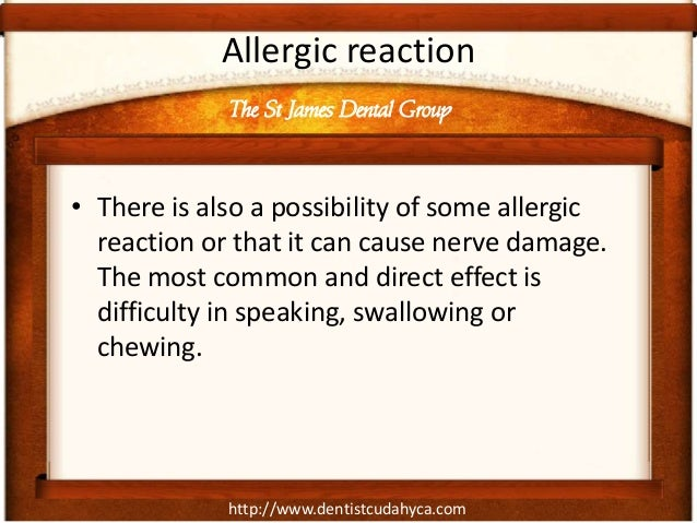 http://www.dentistcudahyca.com Allergic reaction • There is also a possibility of some allergic reaction or that it can ca...