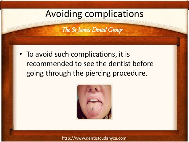 http://www.dentistcudahyca.com Avoiding complications • To avoid such complications, it is recommended to see the dentist ...