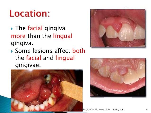 oral pyogenic granuloma, Skeleton