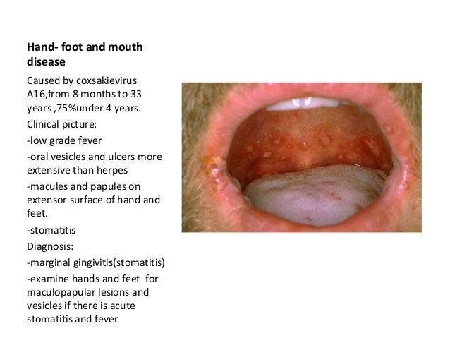 Hand Foot Mouth Disease In Adults Oral ulcers