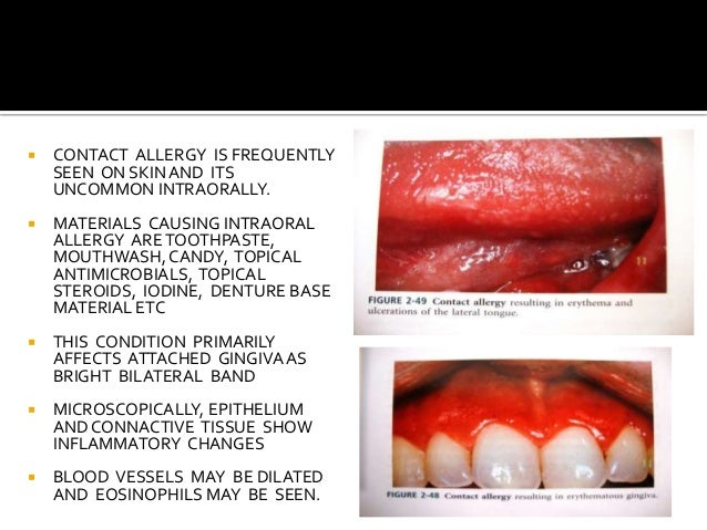 Oral ulcers