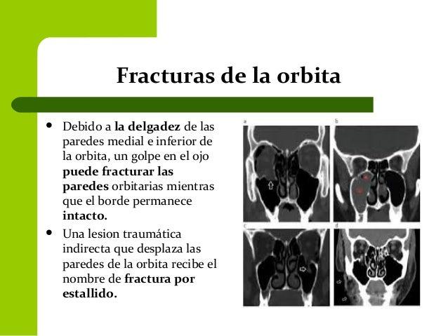Orbita 6 for Paredes orbitarias