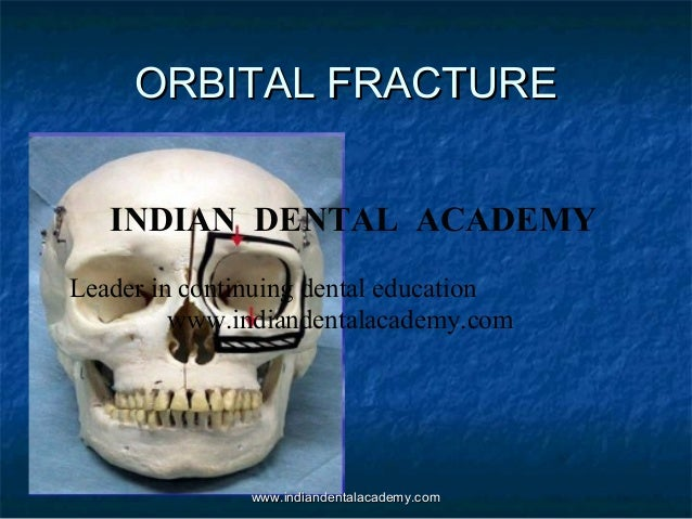 ORBITAL FRACTURE INDIAN DENTAL ACADEMY Leader in continuing dental education www.indiandentalacademy.com  www.indiandental...