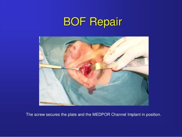 Orbital Blow Out Fracture Repair Certified Fixed