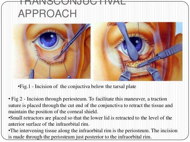 Delightful Orbital Floor Dissection ...