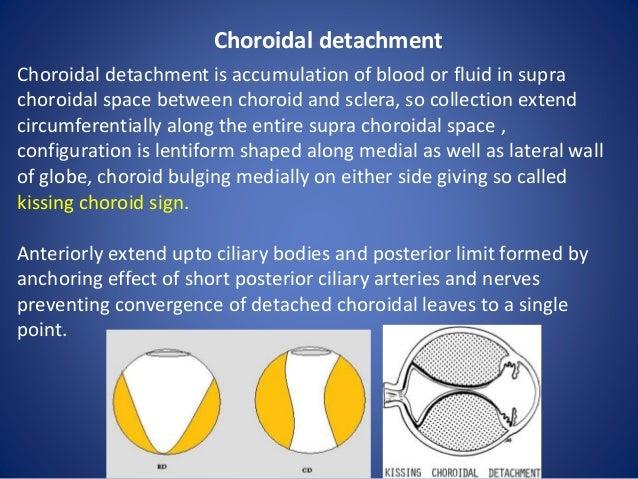 Orbital Pathologies Radiology