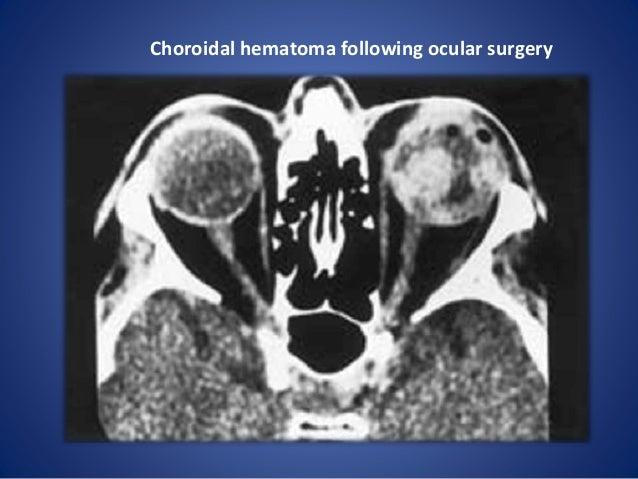 Ocular Trauma And Choroidal Hematoma 6