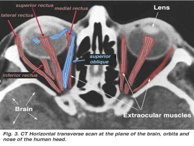 Orbitas anatomia radiologica