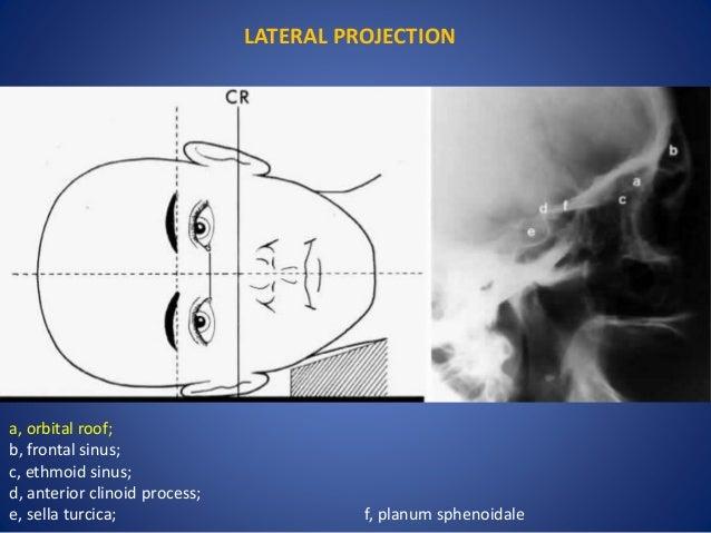 Orbit Imaging Anatomy