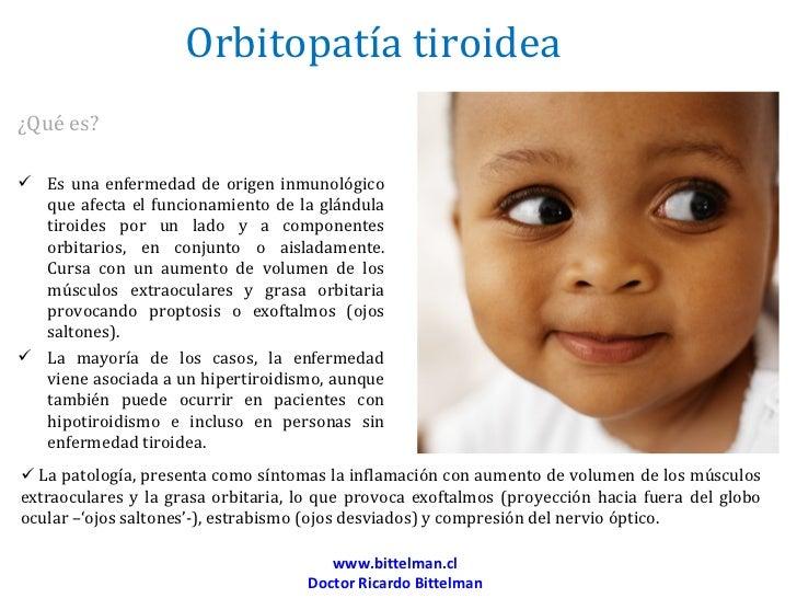 Orbitopatía tiroidea¿Qué es? Es una enfermedad de origen inmunológico  que afecta el funcionamiento de la glándula  tiroi...