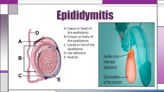 epididymitis a real pain essay Testicular pain is a discomfort felt in the testicles (testes) or scrotum causes of testicular pain, discomfort or swelling may be very serious and require prompt medical treatment, like testicular torsion , which is a medical emergency that requires surgery.