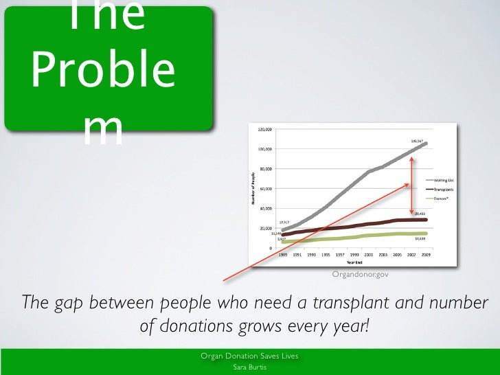 organ donation presentation Slides related to organ donation can be viewed and downloaded.