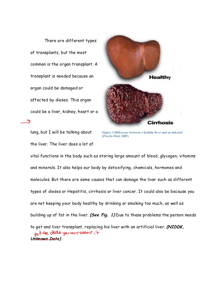 cirrhosis of the liver essay