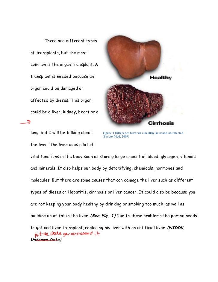 cirrhosis of the liver essay