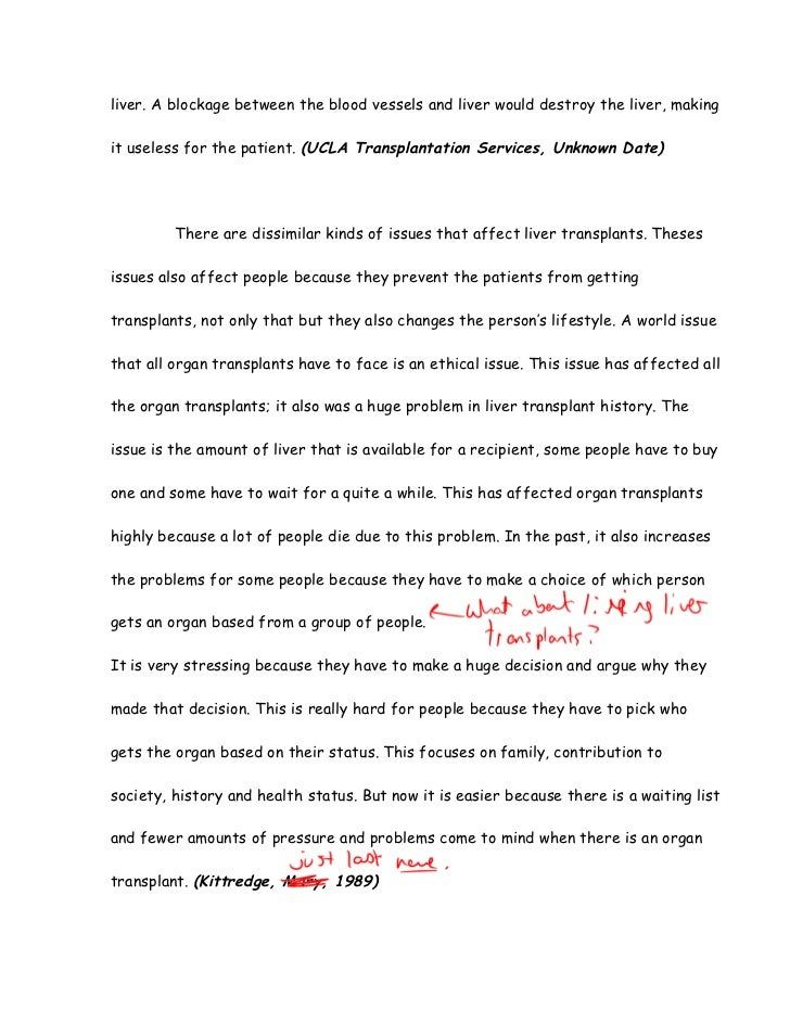 liver transplant essay  kittredge mary 1989 5 after a transplant