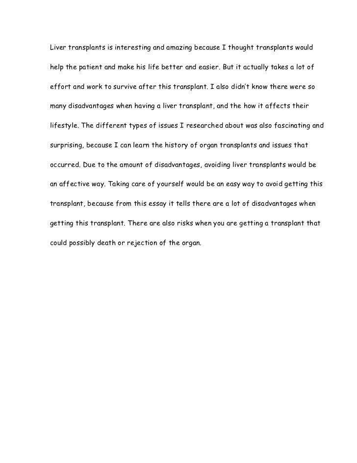 liver transplant essay 7