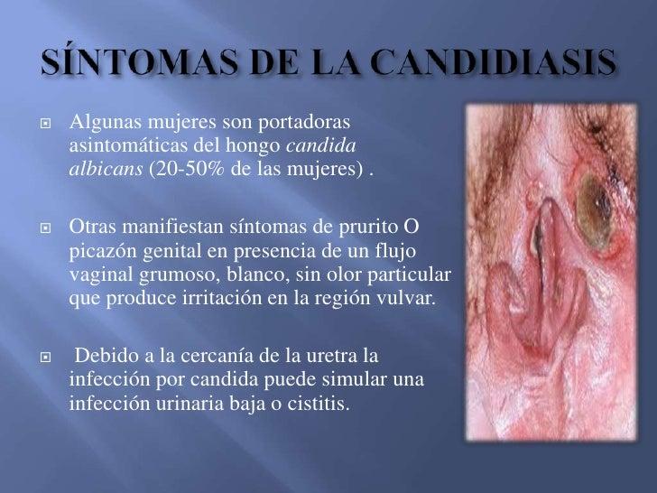 Labios De La Vagina Irritados 52