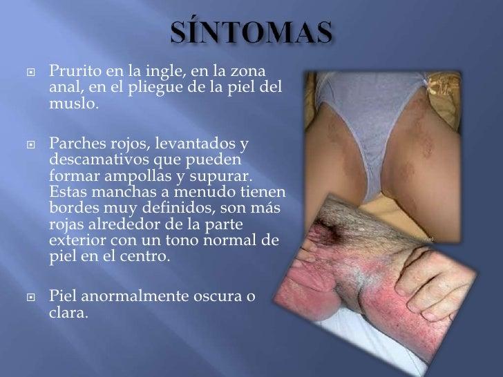 Si no curar la psoriasis de las uñas