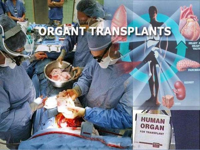 organ transplantation and its social implications 0 introduction organ transplant, defined as the transfer of a living tissue or organ to an injured or ill person to restore health or reduce disability, first started in the 1930s 1.