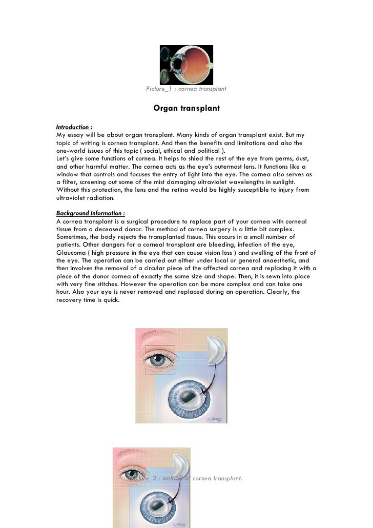 organ transplant essay picture 1 cornea transplant organ transplant introduction my essay