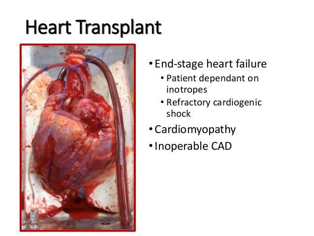 Organ transplant ppt heart transplant ccuart Choice Image