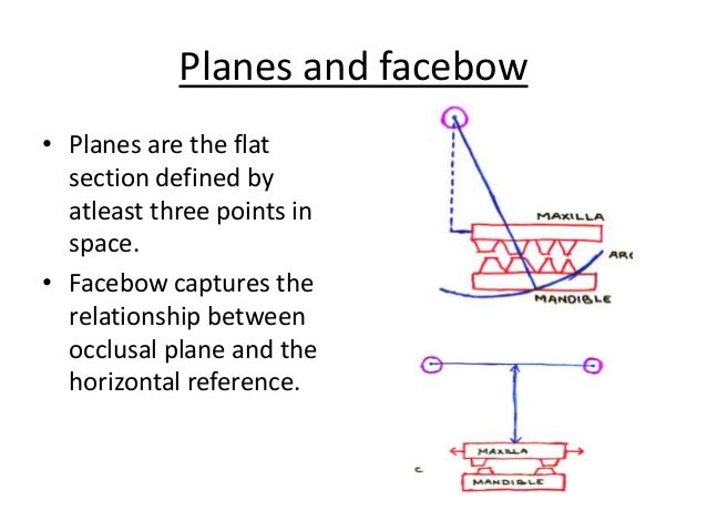 Orientation jaw relations & face bow X Axis Definition
