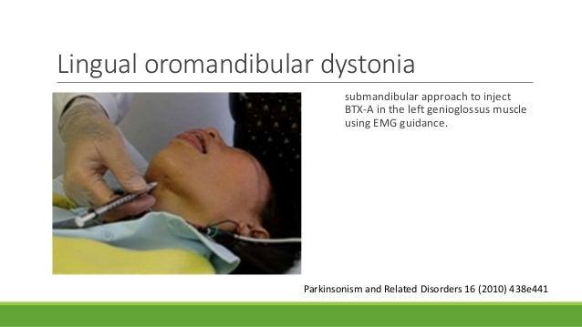 btx a injection