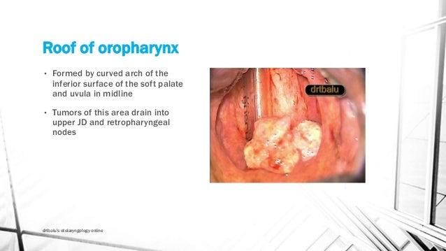 Oropharyngeal tumorsslideshare