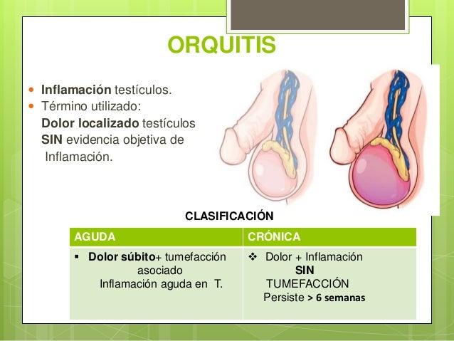 ORQUITIS  Inflamación testículos.  Término utilizado: Dolor localizado testículos SIN evidencia objetiva de Inflamación....