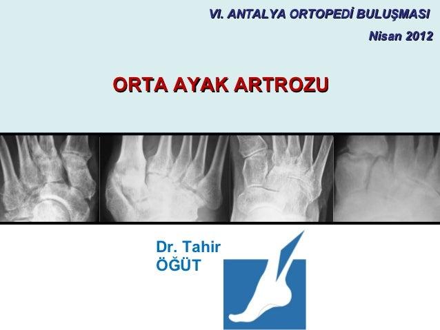 VI. ANTALYA ORTOPEDİ BULUŞMASI                               Nisan 2012ORTA AYAK ARTROZU   Dr. Tahir   ÖĞÜT