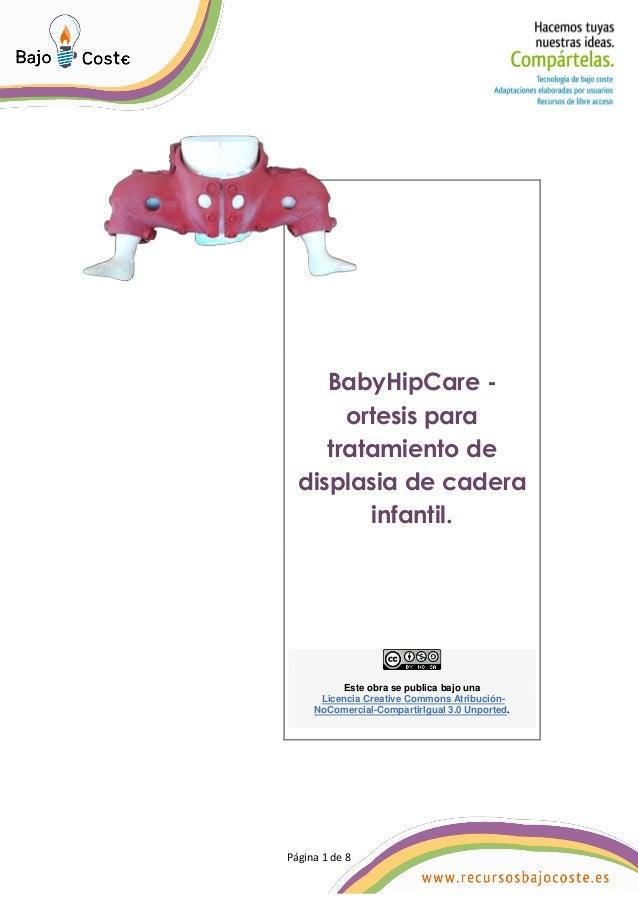 P�gina 1 de 8 P�gina 1 de 8 BabyHipCare - ortesis para tratamiento de displasia de cadera infantil. Este obra se publica b...