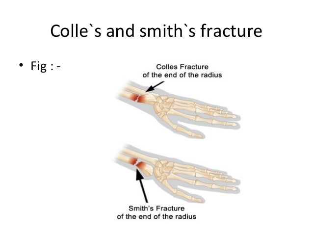 Colle`s and smith`s fracture