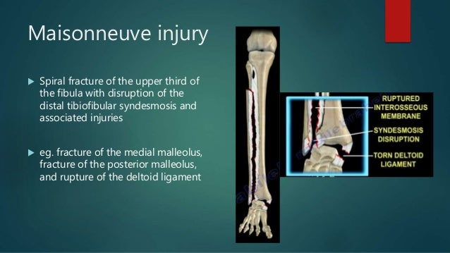Ankle Fractures and Dislocations Injuries | Bone and Spine