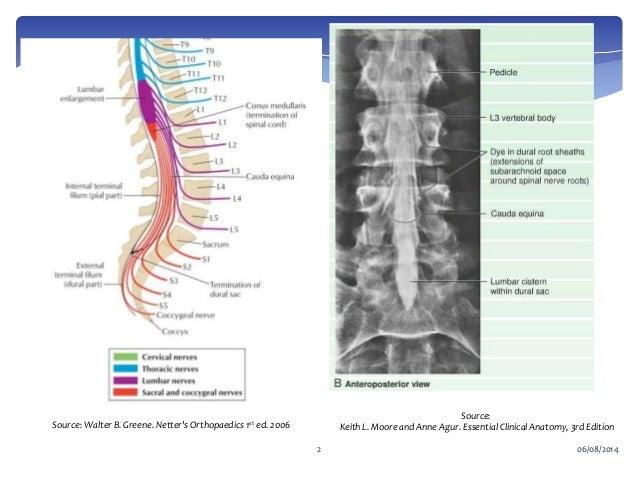 Conus medullaris and cauda equina syndrome   638 x 479 jpeg 62kB