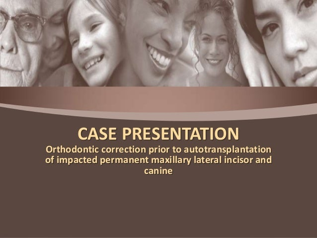 CASE PRESENTATION Orthodontic correction prior to autotransplantation of impacted permanent maxillary lateral incisor and ...
