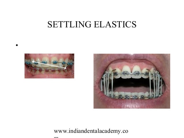 Orthodontic Materials Certified Fixed Orthodontic Courses