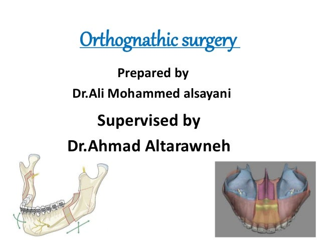 Orthognathic surgery Supervised by Dr.Ahmad Altarawneh Prepared by Dr.Ali Mohammed alsayani