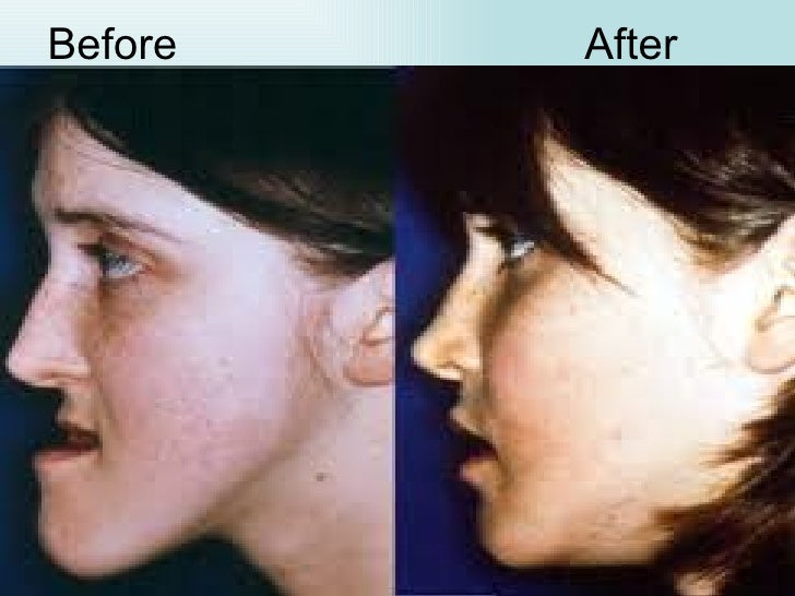 Orthognathic surgery and treatment