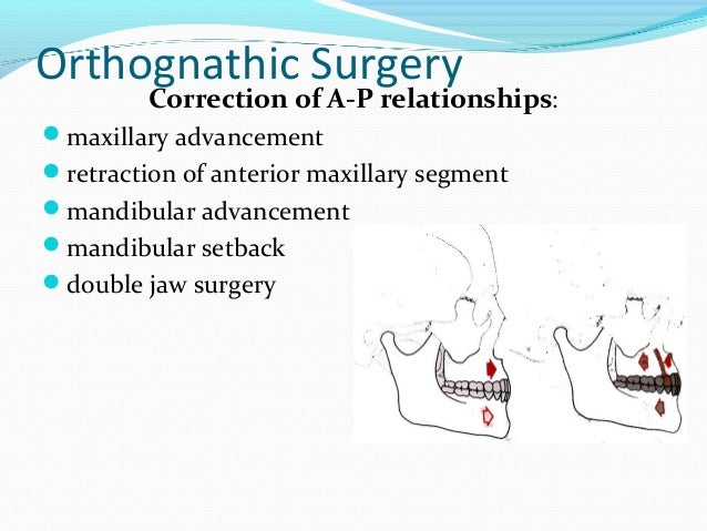 Impacted third molars in sagittal split osteotomies in mandibular prognathism and micrognathia