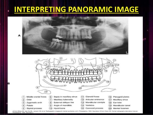 Orthopantomogram Ppt