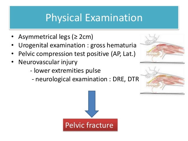 tile classification of pelvic fractures pdf