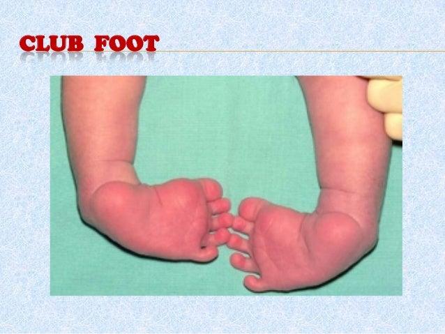 Orthopedic  disorders in Children Slide 2