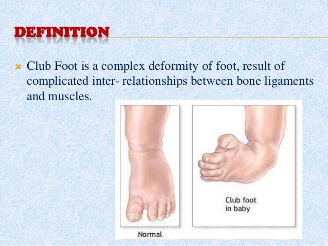 Orthopedic  disorders in Children Slide 3
