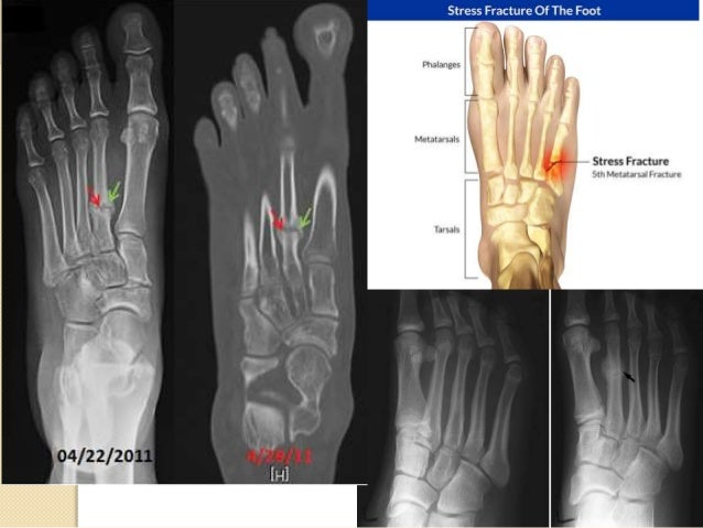 5. Open fracture: a fracture when injury causes a broken bone to pierce the skin • An open fracture is associated with hig...