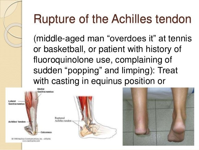  Compartment syndrome is a medical emergency and immediate fasciotomy must be completed in order to relieve pressure befo...