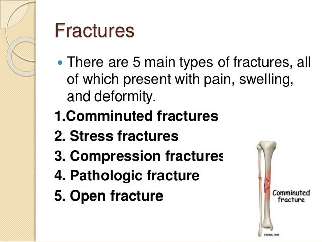 Fractures  There are 5 main types of fractures, all of which present with pain, swelling, and deformity. 1.Comminuted fra...