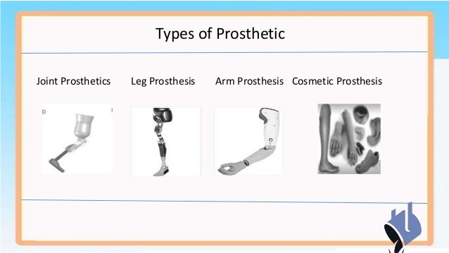 types of prothesis Prosthetic limbs for dogs posted november 15, 2010 there are different types of surgeries that involve prosthetic limbs.