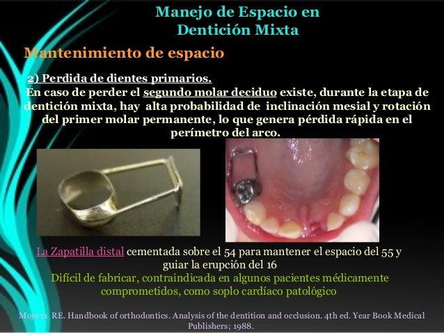 Handbook of orthodontics moyers